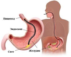 Как болит желудок - симптомы, причины и лечение