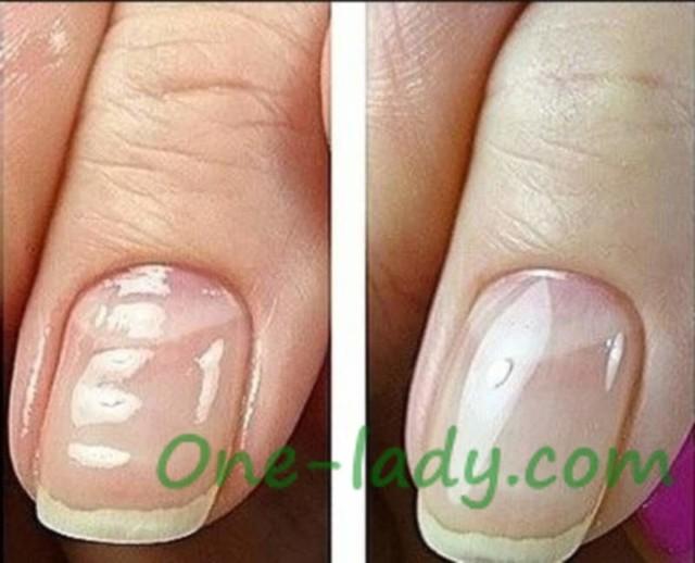 Волнистые ногти на руках: причины почему это возникает
