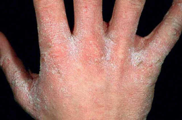 Как лечить покраснение и шелушение кожи между пальцами рук