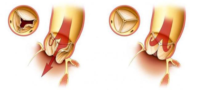 Симптом Мюсси-Георгиевского или Френикус-признак: клинические проявления, развитие заболевания, специфические симптомы, диагностика и лечение