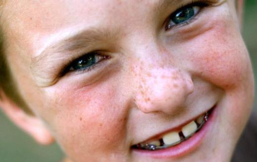 Белые пятна на коже ребенка и взрослого: фото, причины и как лечить