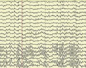 Что показывает ЭЭГ головного мозга, расшифровка энцефалограммы