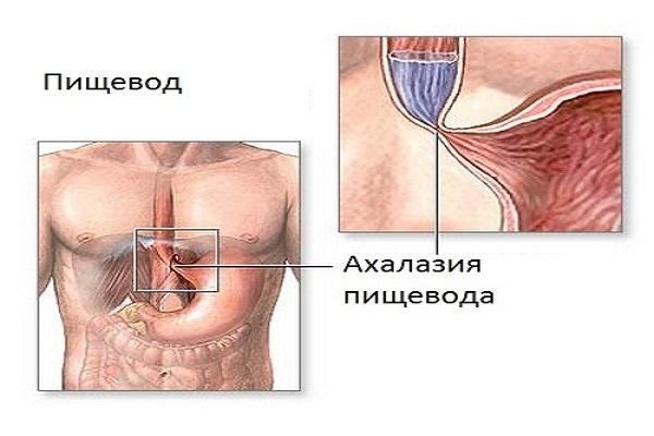 Болезни пищевода: симптомы, признаки, лечение заболеваний