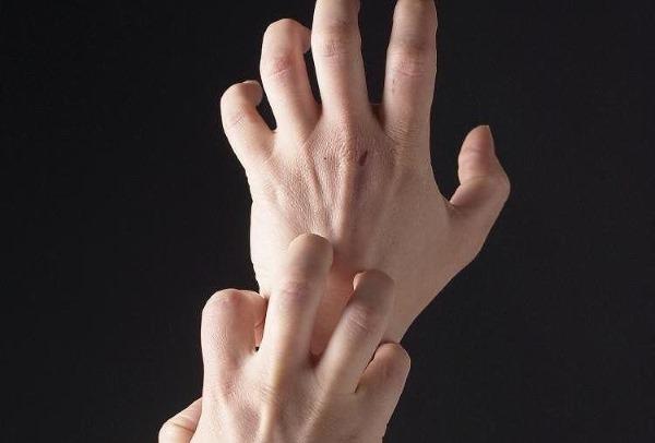 Сохнет и трескается, шелушится и облезает кожа на руках до крови: что делать, причины