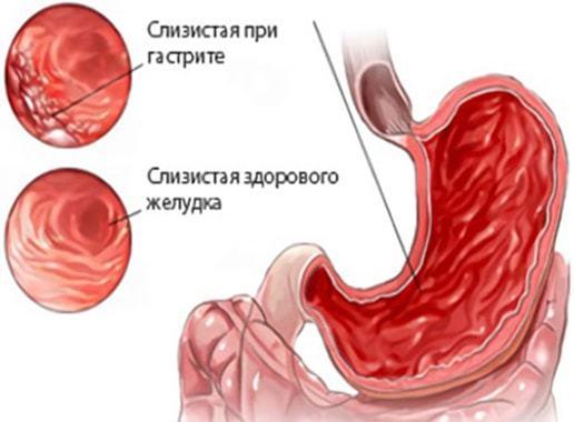 Понос и рвота при беременности