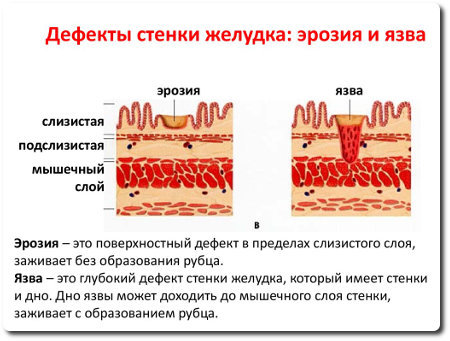 Эрозия желудка - симптомы и лечение заболевания