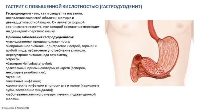 Гастрит с повышенной кислотностью – симптомы, лечение, диета