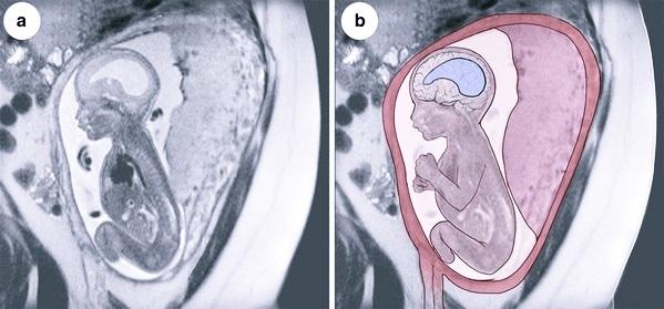 Вентрикуломегалия у грудничка: что это и насколько опасно?