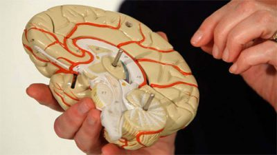Эпилепсия, лечение у взрослых, можно ли вылечить полностью и навсегда