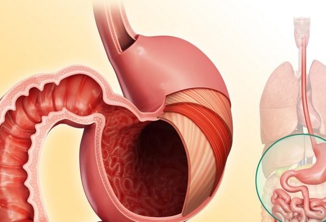 Питание при гастрите и язве желудка: диета