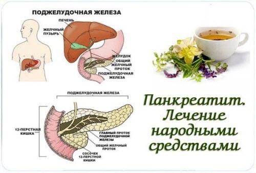 Симптомы панкреатита у мужчин и лечение народными средствами
