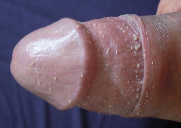 Смегма у мальчиков и мужчин, скопление и удаление смегмы у ребенка, покраснение головки