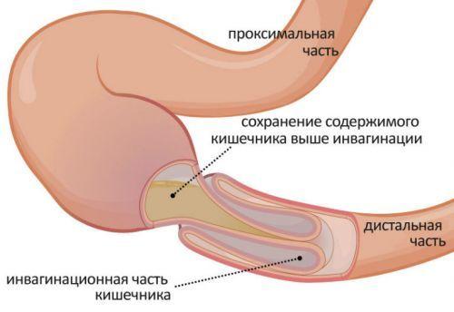 В области пупка при нажатии болит живот
