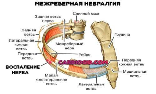 Покалывание под ребрами: слева и справа - причины