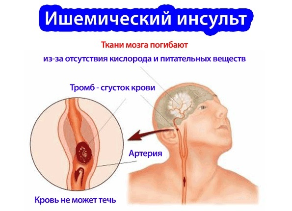 Ишемический инсульт головного мозга: лечение, восстановление и возможные последствия