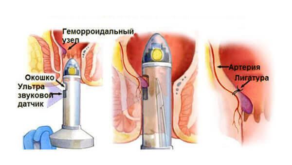 Геморрой уролог врач лечит, как проходит прием у проктолога