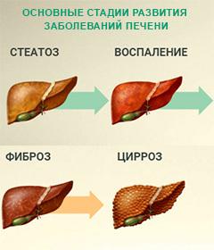 Признаки и симптомы заболеваний печени: виды болезней печени человека, их последствия и профилактика