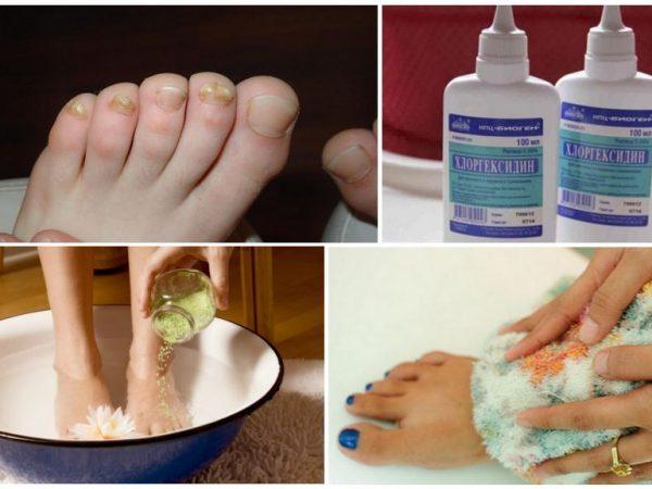 Хлоргексидин от грибка ногтей на ногах: отзывы, инструкция по применению