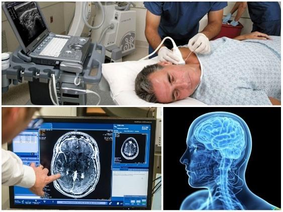 Что показывает УЗИ сосудов головного мозга и шеи у взрослых?