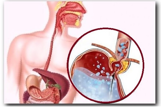 Горечь во рту - причины и лечение, от чего бывает горечь во рту у женщин
