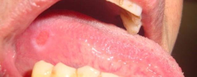На языке белые язвочки у взрослого: возможные причины, как лечить
