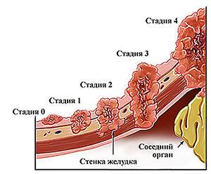 Рак желудка – причины, признаки, симптомы и лечение рака желудка 4 стадии. Операция и химиотерапия