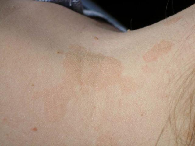 Цветной лишай – фото, лечение, мазь от цветного лишая у человека