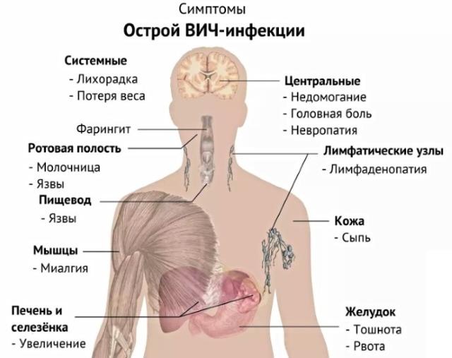 Грибок на члене: симптомы и признаки