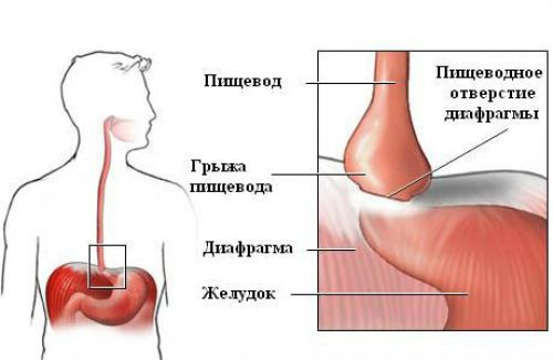 Рентгеноскопия пищевода, желудка и кишечника: подготовка к рентгену ЖКТ, как делается и расшифровка рентгенологического исследования