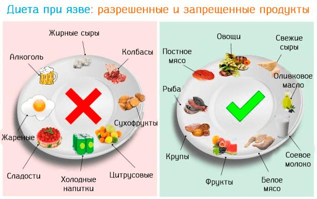 Список продуктов при язве - что можно есть и нельзя, отзывы