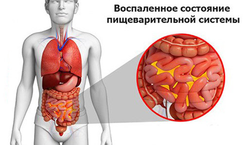 Лечение язвы двенадцатиперстной кишки народными средствами
