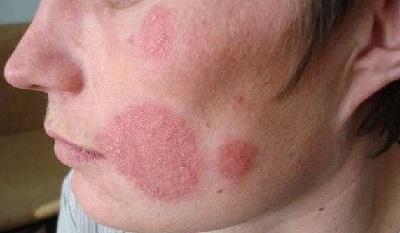 Микроспория гладкой кожи: симптомы, диагностика и лечение