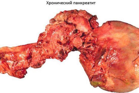 Что пить при панкреатите: препараты и средства народной медицины