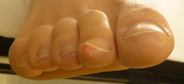 Нарост под ногтем на ноге фото