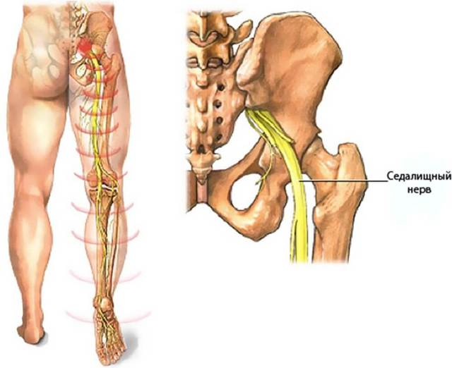 Воспаление седалищного нерва - симптомы и лечение защемления седалищного нерва