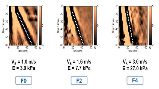 Фибросканирование печени расшифровка результата
