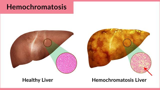 Гемохроматоз - причины, симптомы, диагностика и лечение