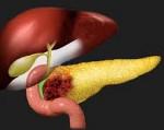 Рак поджелудочной железы - причины, симптомы, диагностика и лечение, прогноз