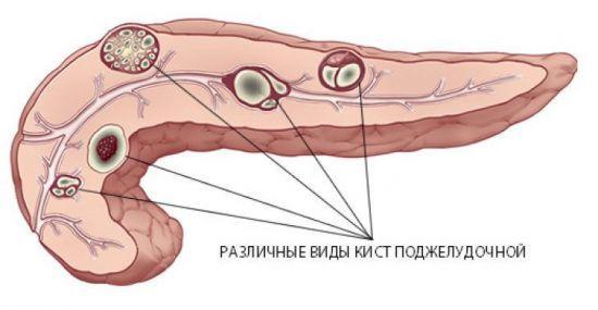 Киста поджелудочной железы - можно ли обойтись без операции?