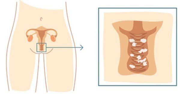 Белые выделения перед месячными: густые, жидкие и кремообразные