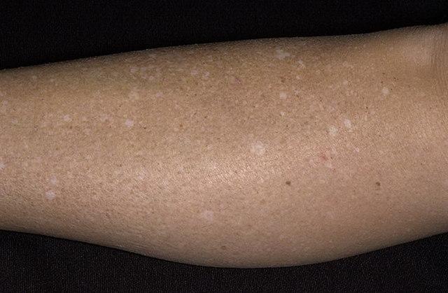 Пятно на коже у ребенка (34 фото): белые, кофейные и шершавые красные, светлые пятна у грудничков и новорожденных, белые после загара