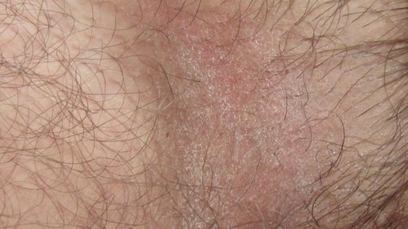 Грибок в паху у мужчин: чем лечить, фото, симптомы