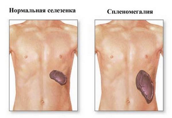 Тяжесть в левом боку под ребрами причины