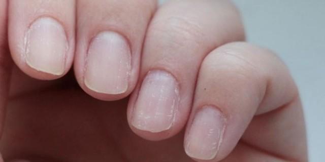 Как избавиться от слоения ногтей - слоятся ногти