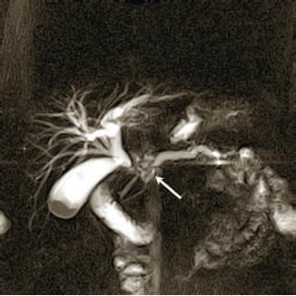Диагностика рака поджелудочной железы: осмотр, анализы, узи, томография, ангиография, исследование тканей опухоли, эрхпг