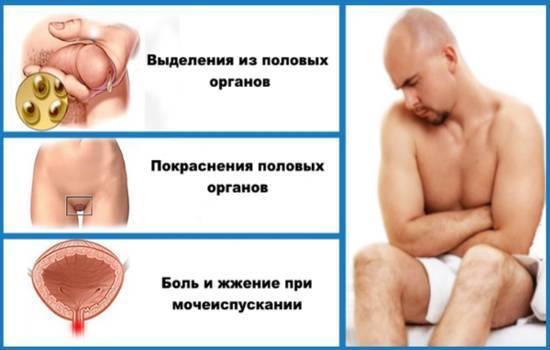 Candida albicans - что это такое: симптоматика и лечение