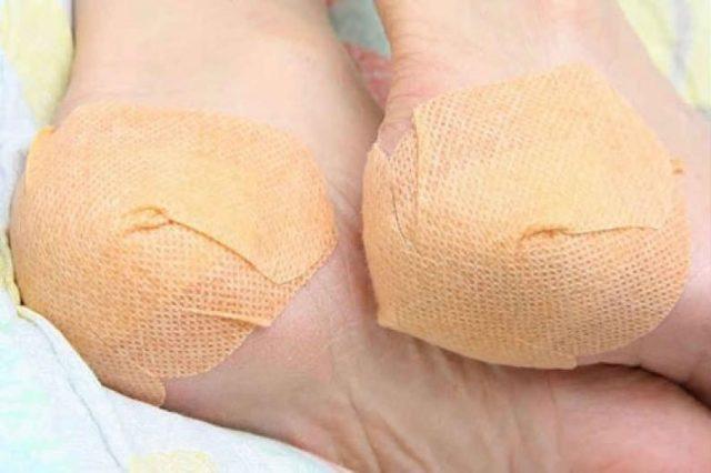 От чего возникают трещины на пятках и как их лечить в домашних условиях