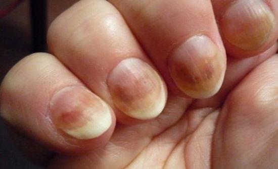 Чешутся пальцы после гель-лака: что делать и почему