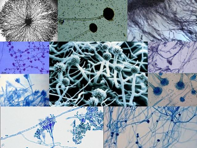 Мицелий патогенного гриба у человека (споры): как обнаружить патогенный грибок и способы лечения, причины и симптомы, диагностика заболевания и пути заражения