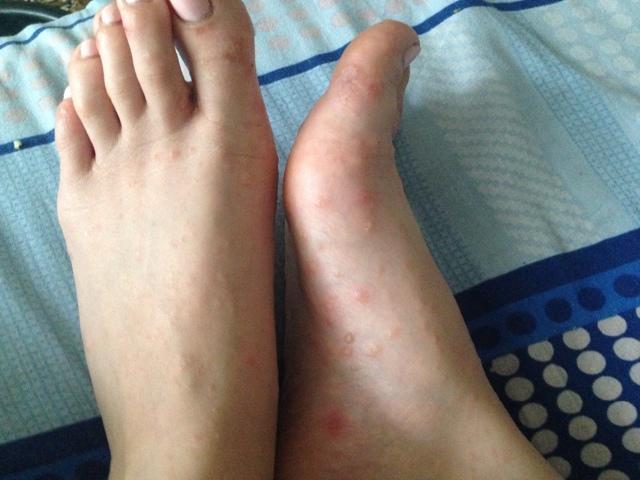 Инфекционный дерматит на ногах – лечение мазью
